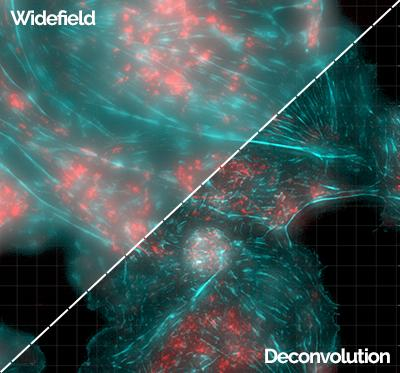 Widefield Deconvolution - Dragonfly