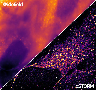 Widefield dSTORM - Dragonfly